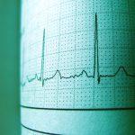 Kauno klinikose – pirmoji aortos vožtuvo implantacija neužmigdant paciento